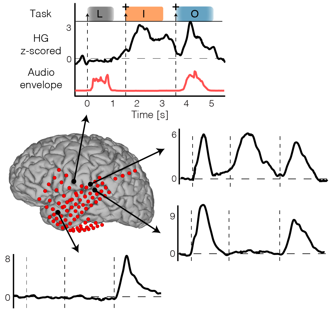 Time course of changes in brain activity
