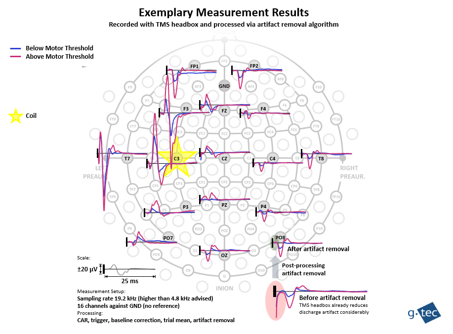 simultaneous tms and eeg recordings